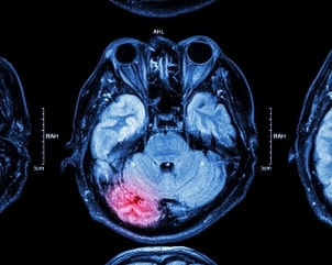 mri of brain brain injury 1